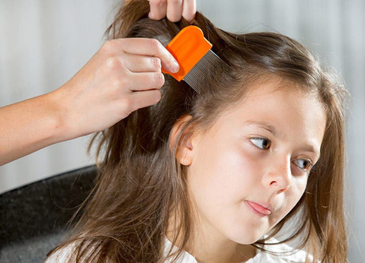 How to prevent from head lice